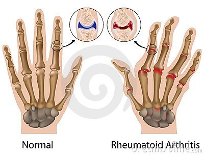 Rheumatoid arthritis (korai stádium)