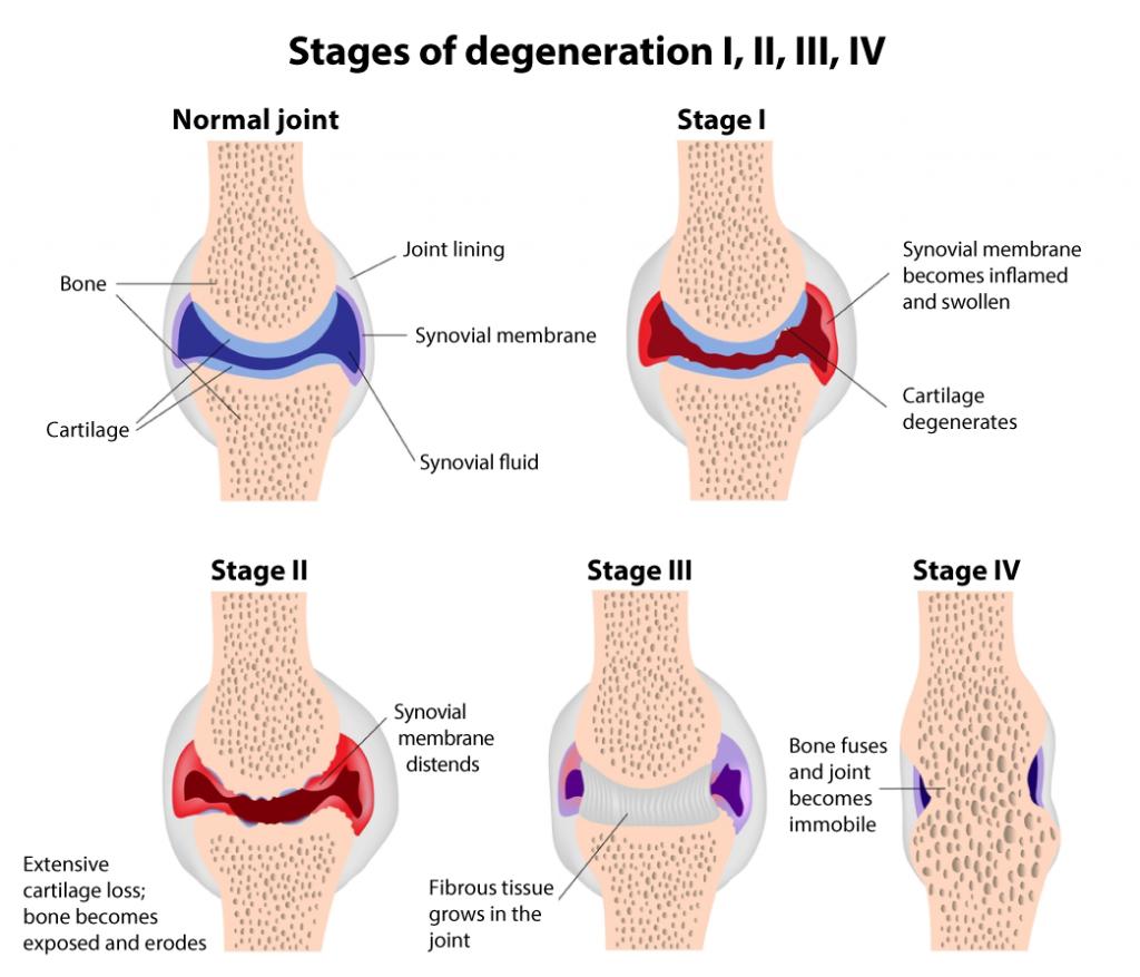 rheumatoid arthritis stages