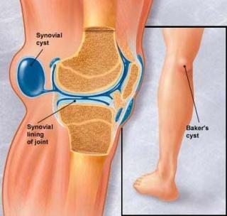 rheumatoid arthrosis kezelésére szolgáló gyógyszerek térd helyreállítása töréssel és elmozdulással