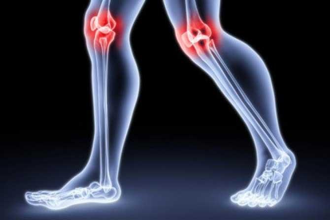 térdízület szinovitisz és bursitis kezelése