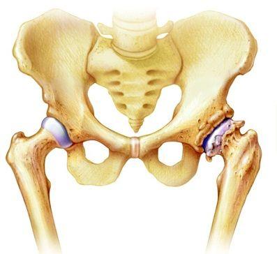 csípőízület kezelése ízületi gyulladás