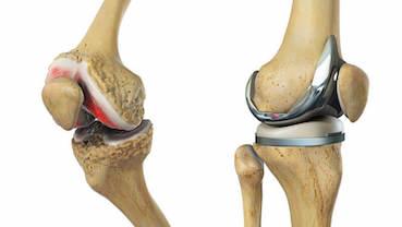 ha ropog és ízületi fájdalom csípőízület, ahol kell kezelni