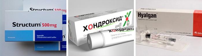 chondroprotectors artrózis a térdízület 3 fokos