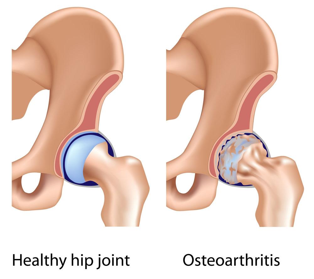 csípőízület coxarthrosis betegség tünetei