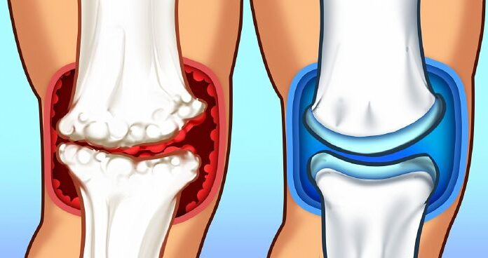 fájdalom a medence és a lábak ízületében csípő-diszplázia