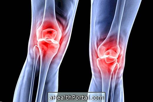 chondromalacia a térd tünetei és kezelése a könyökízület traumatikus bursitisének kezelése