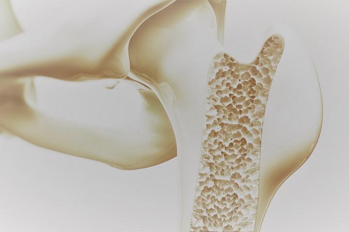 Elkerülhetjük a csontritkulást | TermészetGyógyász Magazin