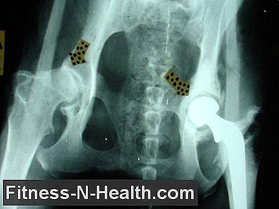 csípőízület csípőízületének osteoarthritis kezelése