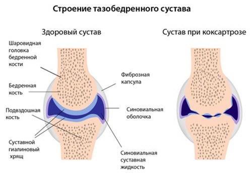 csípőízületi kezelés coxarthrosisának súlyosbodása ízületi kezelés stavas