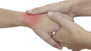 csuklóízület csuklóízületi kezelése