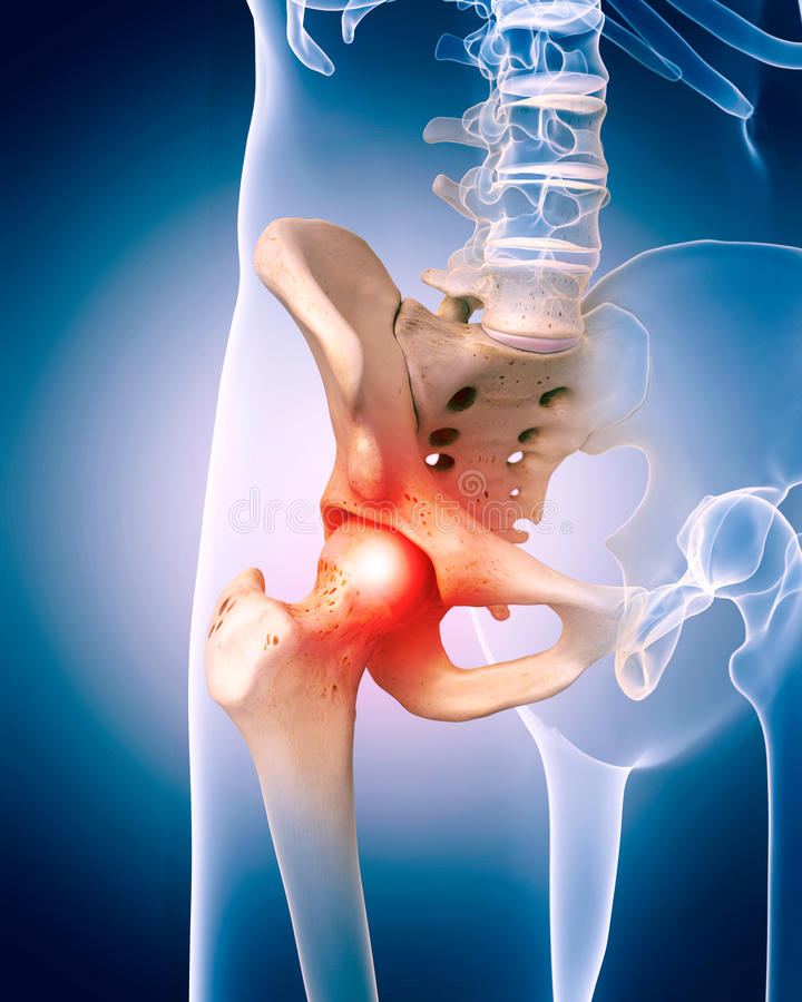 súlyos fájdalom a csípőízület lábain ízületek kezelése ferde hegyen