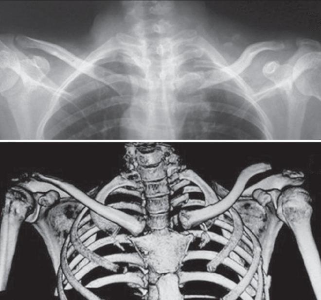 A felső végtag csontjait 2 csoportra oszthatjuk: - PDF Free Download