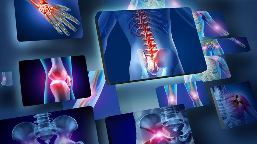 Arthritis, izületi gyulladás legyőzése - szelíden