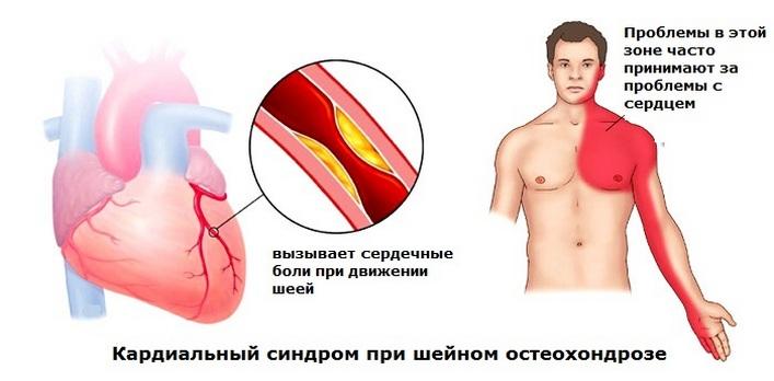 A nyaki osteochondrosis tabletták áttekintése - Térd