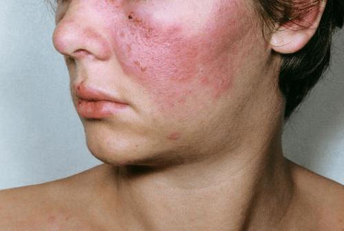 Mi a nem differenciált kötőszövet betegsége?