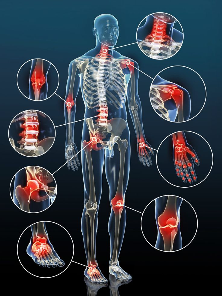 ízületi fájdalom, osteochondrosis
