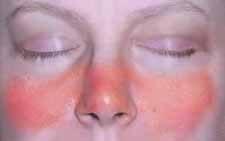 szisztémás kötőszöveti betegség lupus erythematosus