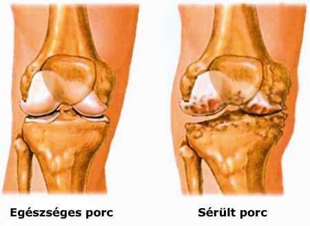 a láb ízületeinek gyulladása femoropatellaris artrosis kezelése