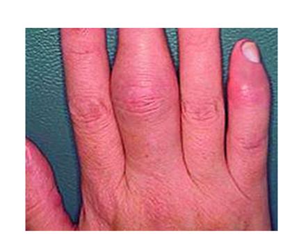 a kéz ujjai ízületeinek ízületi gyulladása okozza