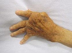 A láb artrózis tünetei és kezelése - a betegség teljes áttekintése