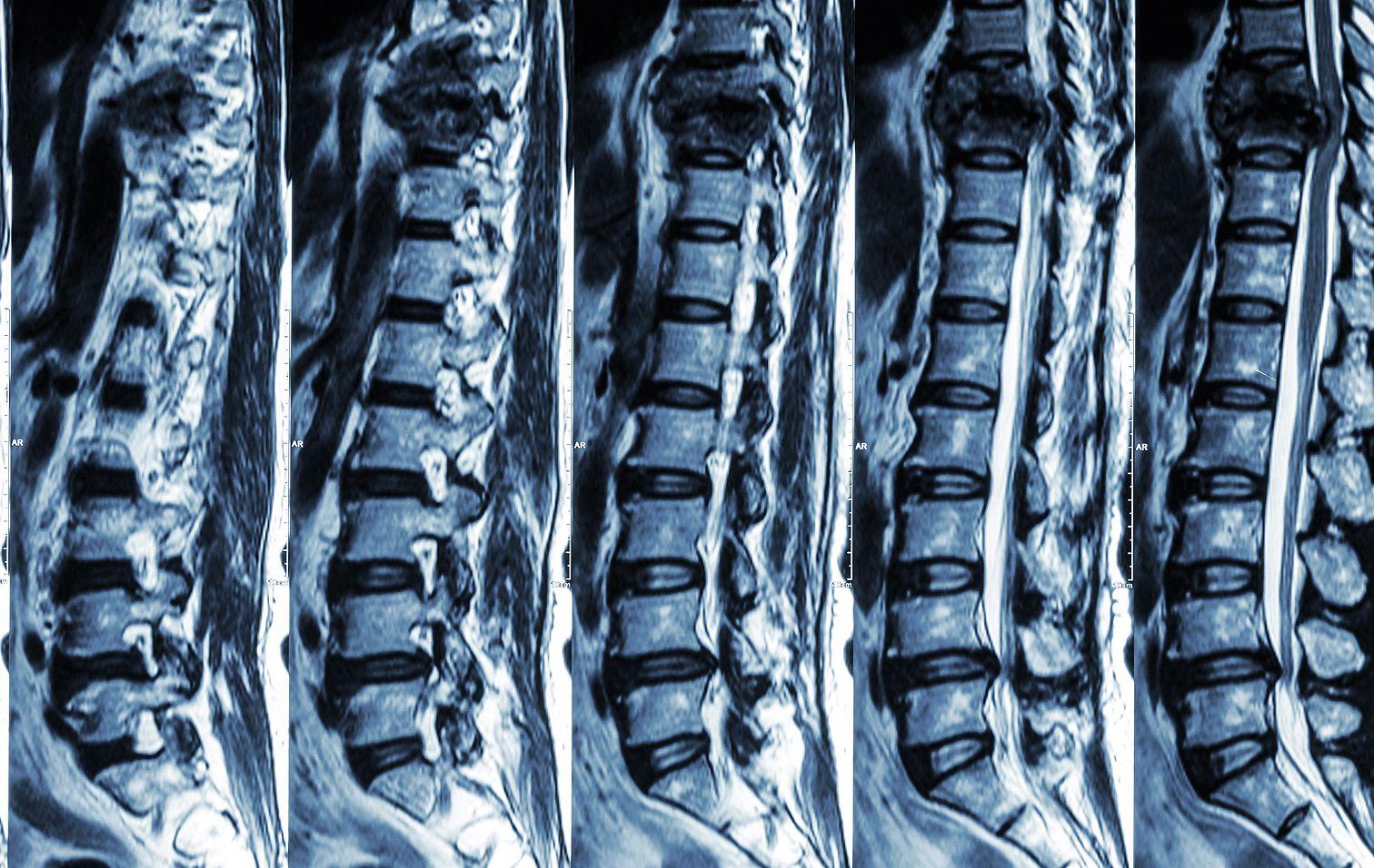 degeneratív betegségek az ízületek és a gerinc)