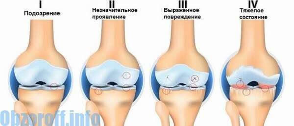 mi gyógyítja a váll fájdalmat fájó fájdalmak a váll és a könyök ízületeiben