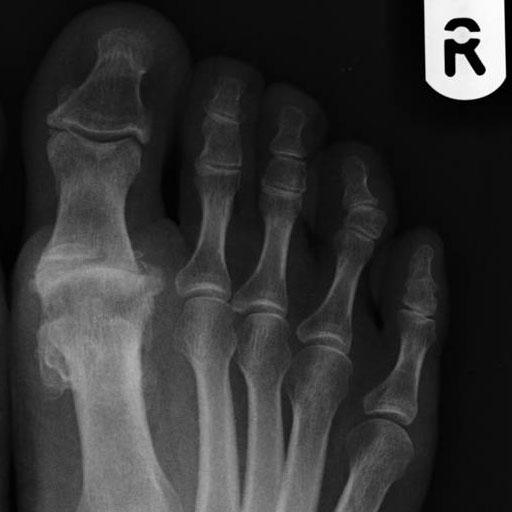 metatarsophalangealis osteoarthritis)