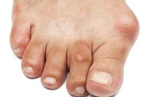 a lábujjak ízületi gyulladása, mit kell tenni