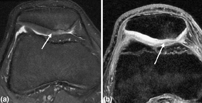 A chondroszarkóma kaialkulása és kezelése   buggarage.hu
