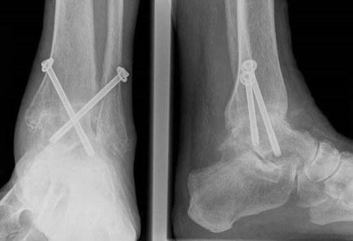 mi a bokaízület posztraumás artrózisa