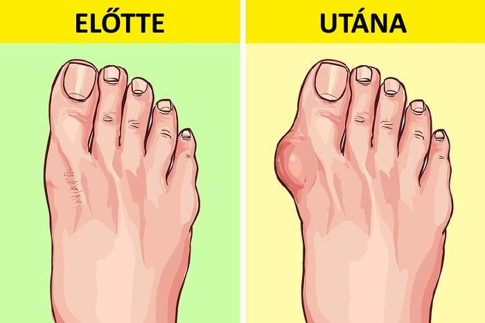 a lábujjak ízületeinek károsodása kondroitin vagy glükozamin, amelyet jobb inni