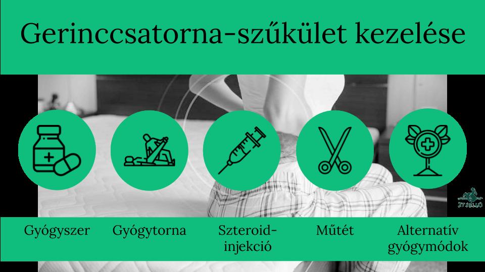 Bokaízületek periarthritis kezelése