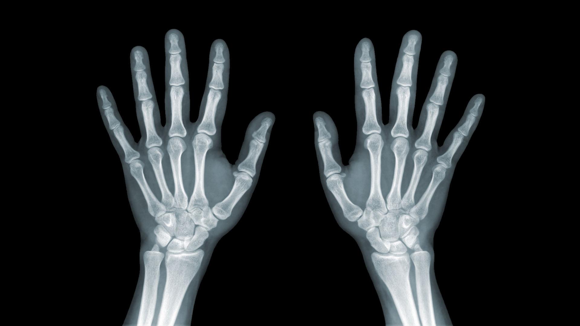 kerülje az ütközéssel járó ízületi sérüléseket