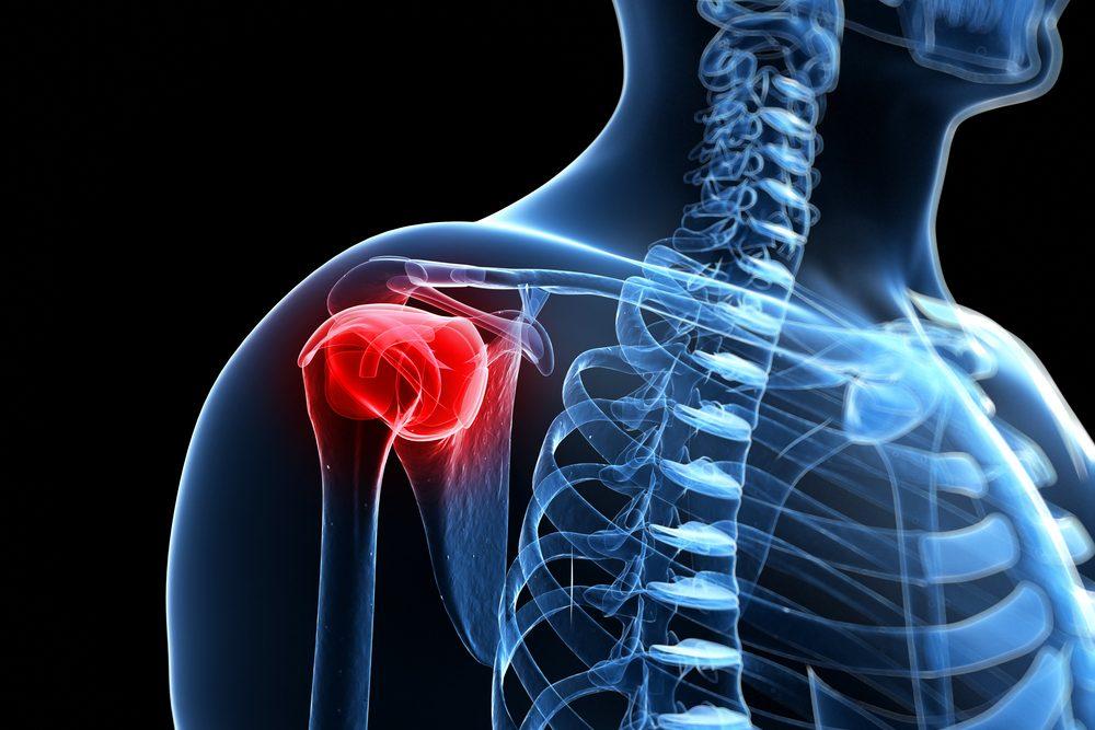 váll- és karfájdalom kezelése)