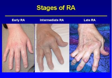 Evaluation of complex therapy in early stages of rheumatoid arthritis