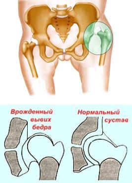 helyreállítás a csípőízület diszlokációja után