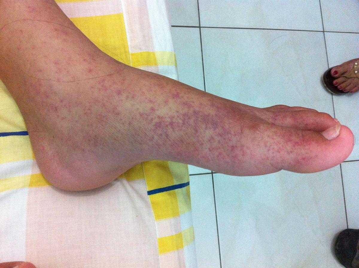a lábak külső ízületeinek duzzanata