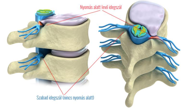 a nyaki gerinc nem áttetszőleges artrózisa és kezelése)