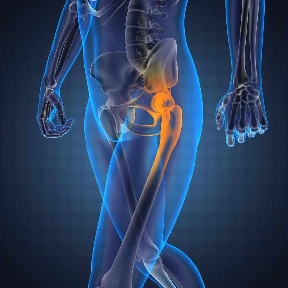ahol a csípőízület általában fáj