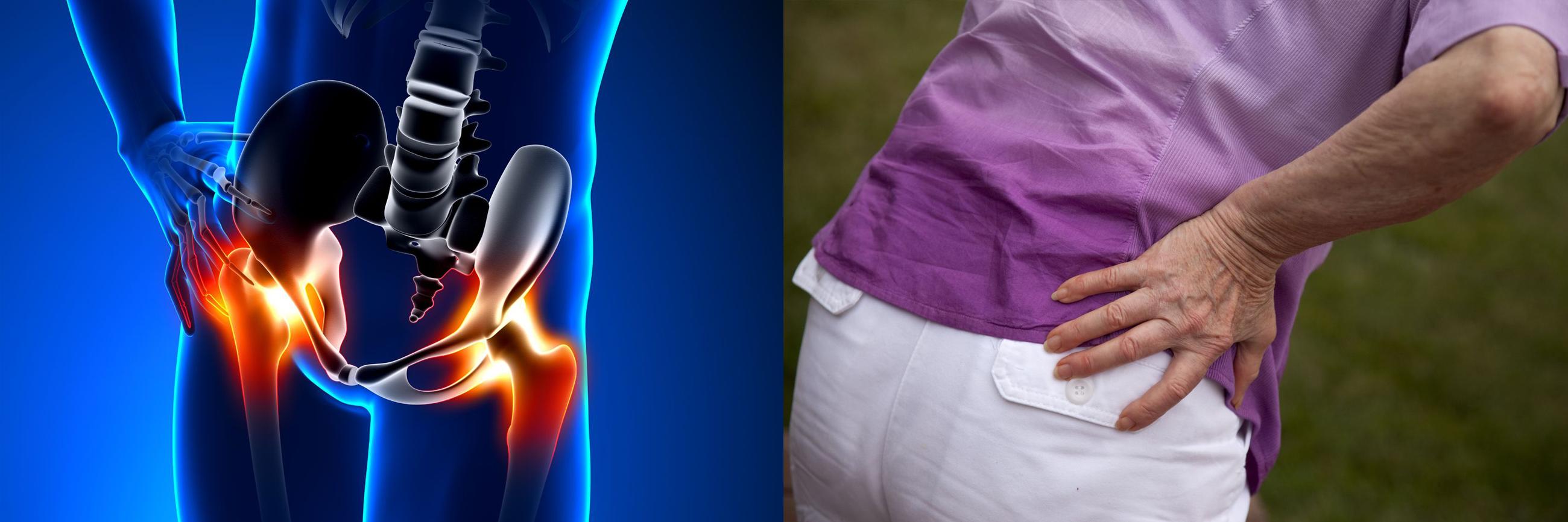 kompresszorok ízületi fájdalom esetén az artrózis és az artritisz kezelési módszereiről szól