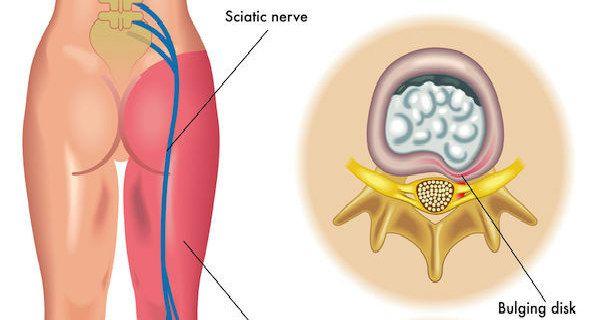emberek gyógymódok ízületek csontritkulás és ízületi kezelés