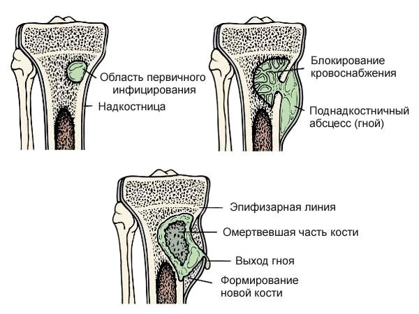 a csípőízületek rosszul fájnak)