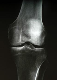 a térd fekvő betegség artrózisának kezelése)