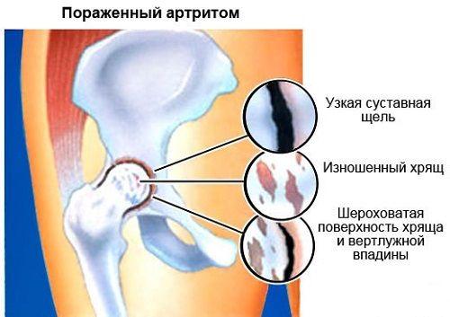 az acetabulum csípőízülete fáj)