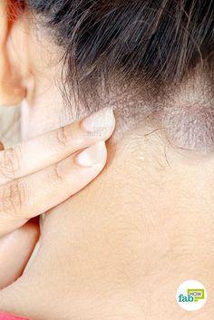 ízületi fájdalom és dermatitis)