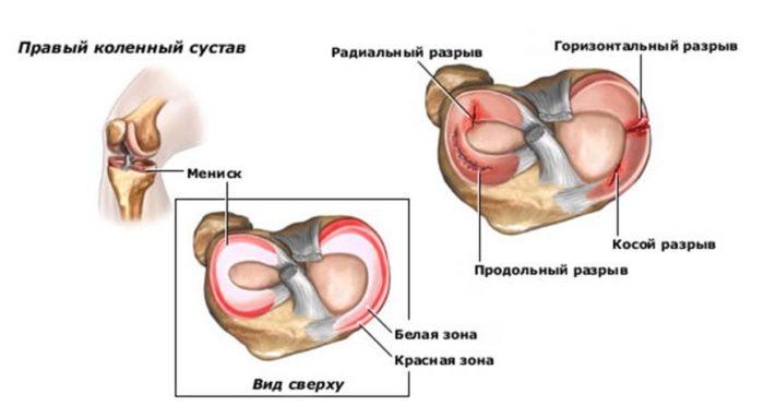a térd ideggyulladása