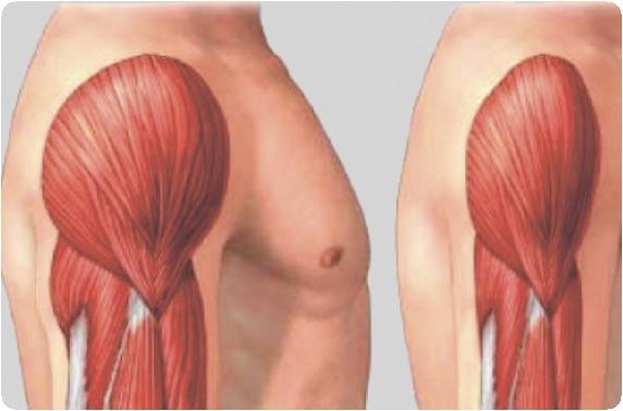 WellWise: Akupunktúra indikációi a WHO szerint