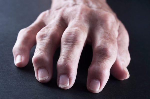 ízületi gyulladás a kezén mi ez