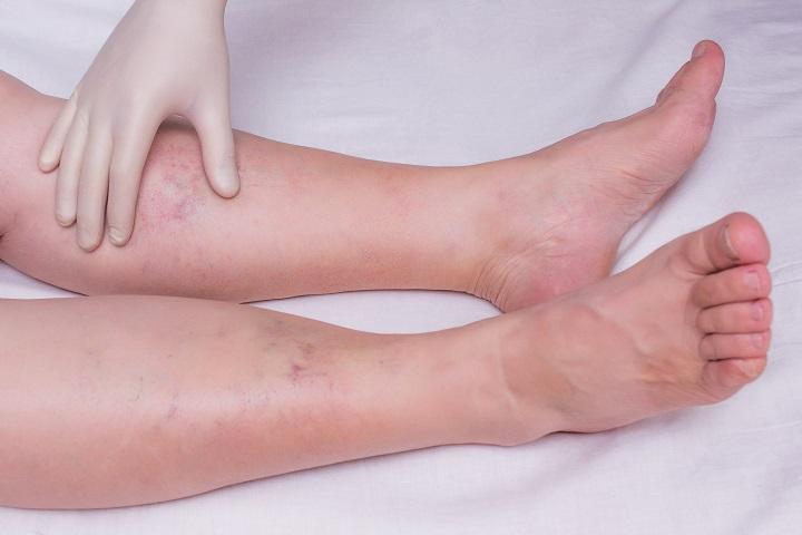 fájdalom a lábak és a bokák borjain)