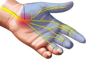 a kéz középső ujjának ízületei fájnak
